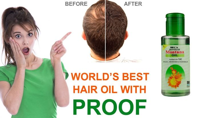 Arnica montana hair oil benefits | arnica montana hair oil effect | Arni...