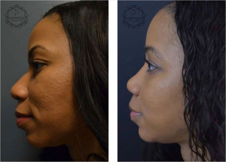 Pin on facial plastic surgery