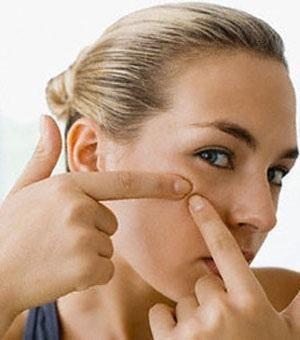 14 remedios caseros para eliminar el acné y los granos