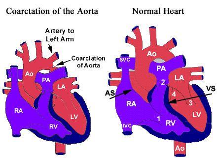 Co-arctation of the Aorta