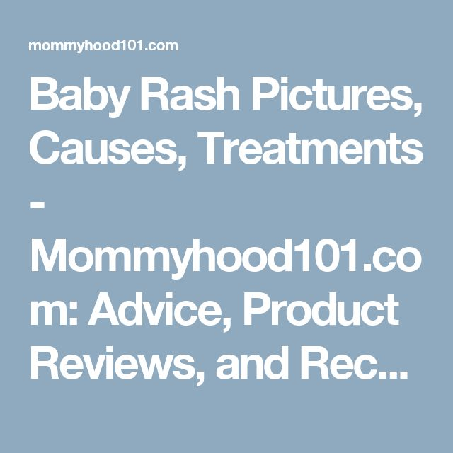 Baby Rash Pictures, Causes, Treatments - Mommyhood101.com: Advice, Product Reviews, and Recent Science