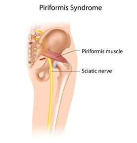 Piriformis syndrome: Treatment in 4 weeks with 3 exercises ...