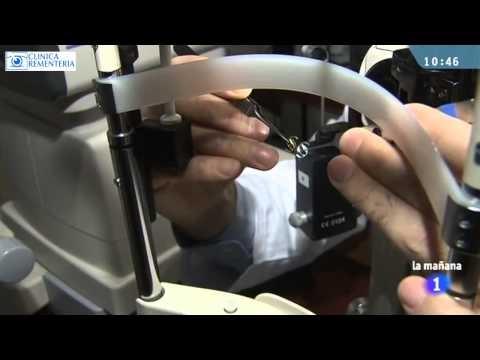 Clínica Rementería | http://www.cirugiaocular.com    El Dr. Rementería y el Dr. Hurtado colaboran con la sección Saber Vivir hablando sobre la cirugía de catarata y los diferentes tipos de lentes intraoculares.    Si quieres más información sobre la cirugía de catarata y los diferentes tipos de lentes que utilizamos te recomendamos el siguiente articulo de nuestra web:  http://www.cirugiaocular.com/index.php/la-vision/cataratas/tipos-de-lente.html