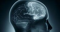 Symptoms, Causes, and Treatment of Frontal Lobe Dementia