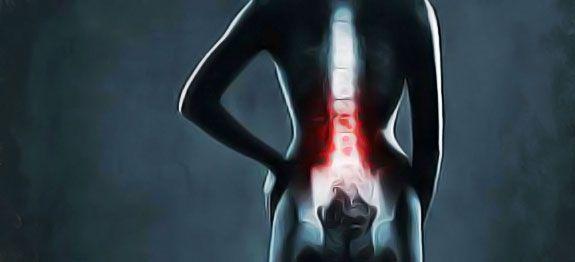 Soulager les douleurs d'une hernie discale et accélérer le rétablissement naturellement