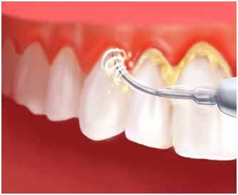 Nearly half of Australian adults have suffered gum disease at some point, so you are not the only one if your dentist suggests this treatment. Scheduling for #dental_scaling with us at Springvale Dental Clinic http://bit.ly/2Dz53UA