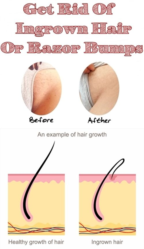lump on bikini line under skin