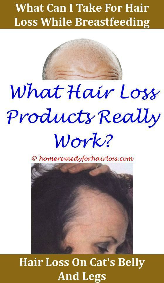What can i do to stop hair loss ligandrol and hair losswill
