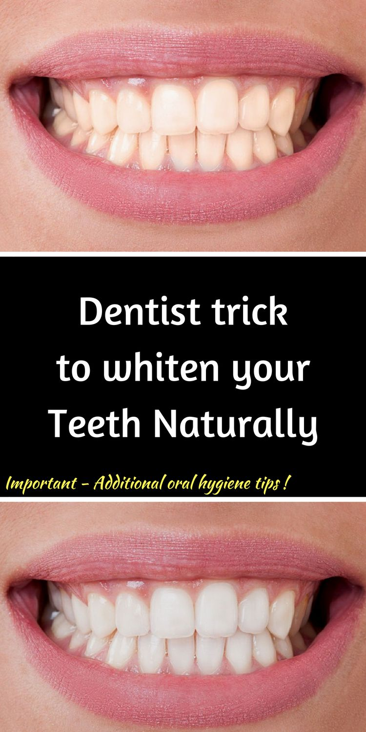 Remove Plaque And Tartar And Whiten Your Teeth With This Di