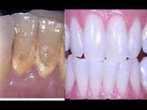 Bastam 2 Minutos Para Clarear Os Dentes Acabar Com Tartar