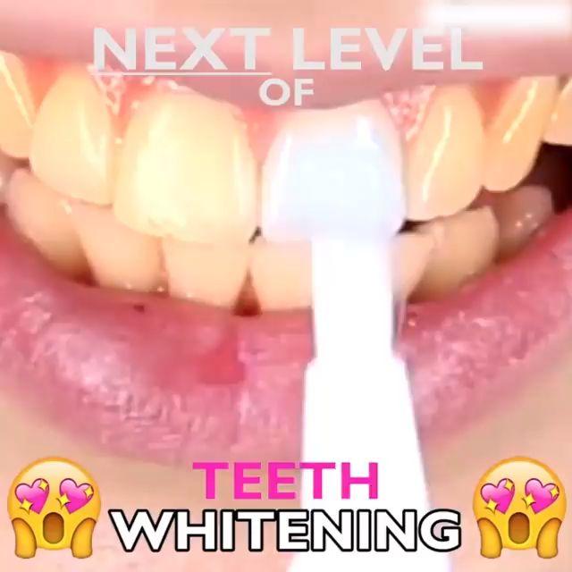 Perfect Teeth Whitening Pen