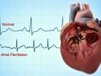 All things cardiac