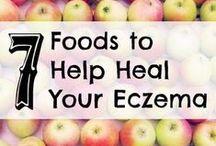 Eczema Remedies / by Caroline Marie