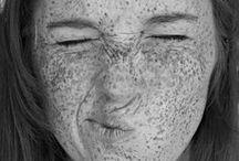 Freckles ;)
