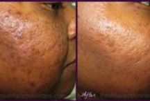 Before & After / Scientific treatment protocols created by Erica Suppa, a research scientist & licensed esthetician, provide proven results. These are actual Fresh Faced Skin Care client pictures. / by Fresh Faced Skin Care