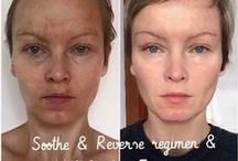 Rodan + Fields / ~ Before & After Pictures ~ Product Info ~ Success Stories   / by Erin Sutton