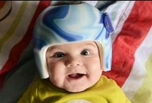 Plagiocephaly / by Charity Murray