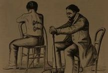 Bloodletting / #apothecary #victorian medicine #anatomy #medical #poison #general surgery #bloodletting