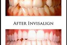 Before & After / Before and after, straighter , whiter teeth, Wellesley Dental Group