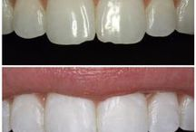 Dental Before & Afters / Sugar Fix Dental Loft patients...we LOVE their smiles!!  See what Dr. Emery did for their smile!!  Imagine what she can do to make you LOVE your smile!  :)  Dental Before And After, Cosmetic Dentistry Before And After, Dental Makeover, Mouth Makeover.