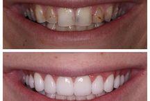 Best Veneers In Chicago / Best Veneers In Chicago, Chicago Cosmetic Dentist, Sugar Fix Dental Loft