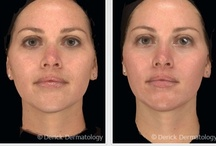 Melanage Peels / Melanage Peels Before and After Photos. Call to schedule an appointment with one of our dermatologists in Barrington, Illinois. 847.381.8899  Melasma Melanage Peels | #Melanage Peels | Melanage Peels Treatment | Melanage Peel Effects | Melanage Peel Treatment | Melasma Melanage Peel