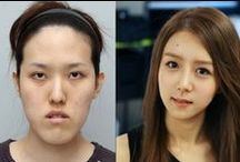 Plastic Surgery / by RocketNews24