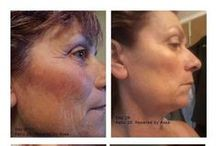 Look Younger within 28 Days with RENU 28 / Do you want to look younger in the next 14 -28 days or your money back? RENU 28 has NO harmful chemicals and is completely natural. http://RedoxSignalingReview.com