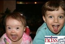 NDSS Your Way / NDSS Your Way is an online program geared towards independent fundraisers interested in raising money on behalf of the National Down Syndrome Society. Fundraisers are invited to Compete, Celebrate or Create with Team NDSS, NDSS Celebrations or NDSS New Ideas. To learn more visit http://ndssyourway.ndss.org
