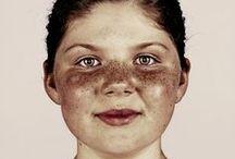 Um Freckles