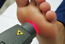 Neuroma Laser therapy