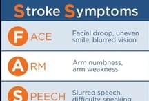 Stroke and Neurology / Sharp HealthCare's stroke prevention and intervention program combines screenings, education and treatment.