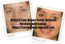 R+F Results / Dr. Rodan & Dr. Fields, the creators of Proactiv® Solution, launched Rodan + Fields Dermatologists to extend their vision of bringing dermatology based skincare solutions to everyone. Now, Dr. Rodan & Dr. Fields have teamed up with Independent Consultants like me around the country to market these prestigious products.Check out my website here: www.carlaraleigh.myrandf.com / by The Makeup Nerd