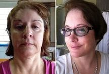 Amazing Before and Afters: Transformations From the RealSelf Community / Check back for new #transformations each week!