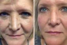 Want to Look 45 at 60? Tips and Tricks For Anti-Aging