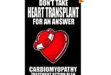 Cardiomyopathy Treatment