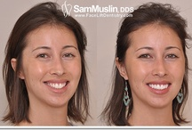 Best Cosmetic Dentistry / Sam Muslin DDS is renowned for his reconstructive work - most notably his hand crafted ultra-thin porcelain veneers and his trademark Face Lift Dentistry treatment.