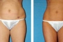 "Before and After  / We've all seen the bad examples, but plastic surgery can be well done and subtle.  These ""Before and After"" shots are proof!"