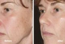 Thermage Skin Tightening / Tighten skin, anywhere on your body, without surgery or injections! Thermage Skin Tightening treatments utilizes carefully controlled RadioFrequency energy to stimulate collagen production -- resulting in tighter, firmer skin.