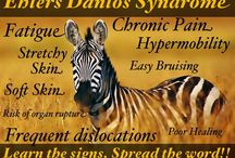 Zebras in the nature / Zebra is the mascot for Ehlers Danlos syndrome and the theme through out my Pinterest boards. On this board you can find zebras in the nature and some other animals with zebra like looks.