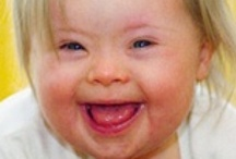 Down syndrome / Information for future use.  Advocacy.  Basic info about Down syndrome.  Info about therapies and education.  Inclusion.  Disability Rights.