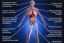 Sjogren's Syndrome/Fibromyalgia/Raynauds / by Maria Lopez