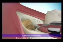 Dental Animation / Animation about dental brace. / by จัดฟัน คลินิกทันตกรรม