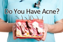 Acne and Diet / You are what you eat! Yes! It certainly is. Acne and diet have a very strong relationship. Your diet gives you a great helping hand in curing your acne. Above that, drink lots of water!