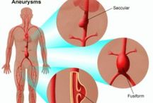 Aortic Aneurysms / An abdominal aortic aneurysm is when the large blood vessel (aorta) that supplies blood to the abdomen, pelvis, and legs becomes abnormally large or balloons outward.  / by PinSimo