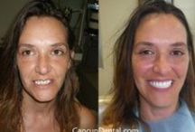 Before and After, a quick review of our patient's history! / These Extreme Dental Makeover cases have changed people's lives!  We THANK each and everyone of you for chosing us and let us be a part of that transformation! All the cases shown below were performed and completed at our clinic, with our labs in 8 days or less. Yes, we DO create you a Hollywood Smile in a week or less.We are a dental clinic in Cancun Mexico specialized in Complete Smile Makeovers.