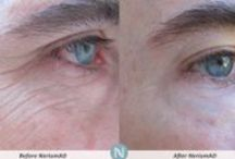 Nerium Age-defying Treatment - in Columbia, Md. / I'm an Independent Brand Partner with Nerium International, a company that made $100 million in sales in its first full year in business ... with just one product, it's flagship age-defying night treatment. The product is amazing. People get REAL results, with REAL science behind the product. And the business opportunity -- and company support -- is incredible. I'm happy to get you a free sample to try for five days and nights. http://jessienewb.nerium.com *** http://jessienewb.nerium.com