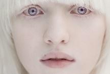 Albino and White Animals