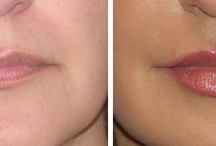 Before and After Lip Augmentation / Before and after photos of lip augmentation using filler injections like Juvederm, Restylane and Perlane.