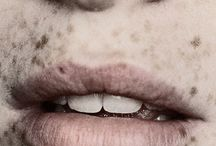 Freckles / by Olivia Katherine